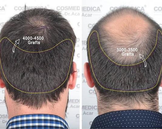 Haartransplantation-in-den-Kronenbereich
