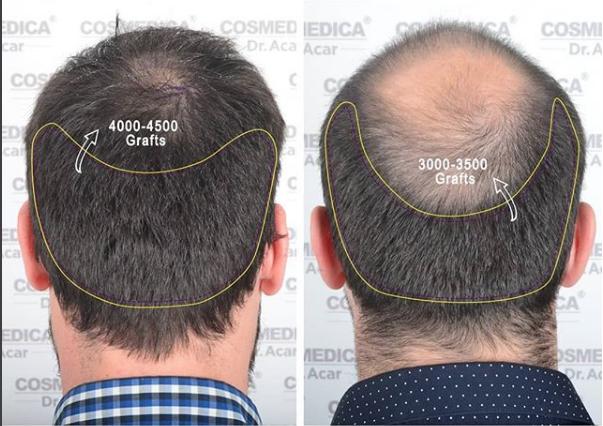 Haartransplantation und Plastische Chirurgie mit Cosmedica